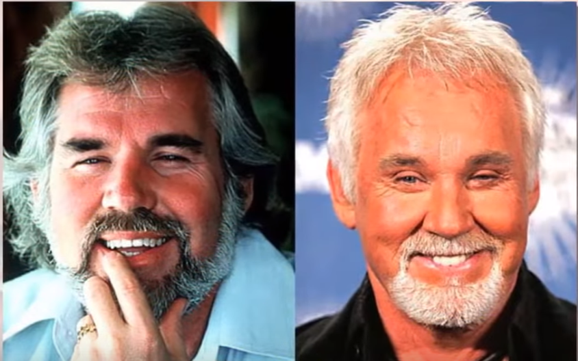 KENNY_ROGERS_CELEBRITY_PLASTIC_SURGERY