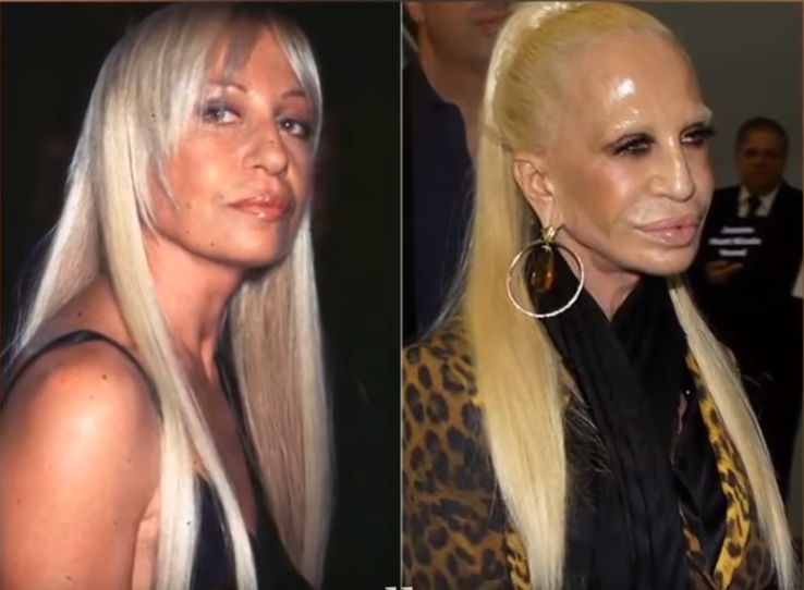 15 Eye-Catching Celebs Destroyed By Plastic Surgery.