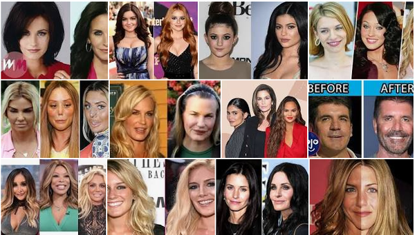 Celebrities Plastic Surgery: The Worst of Lip Augmentation And Face Lift.